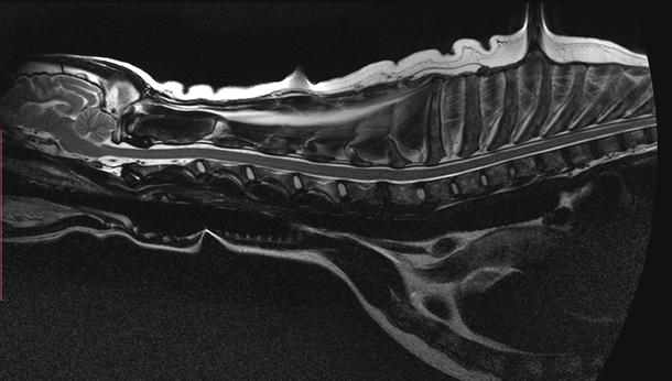 MRI 3