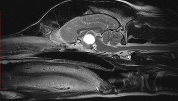 MRI 5